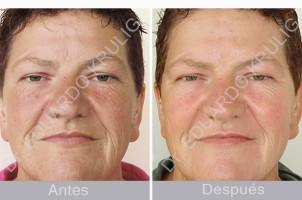 caso-aging-1-1-es