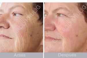 caso-aging-1-3-es